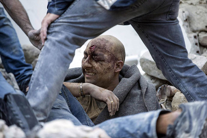 A man is pulled out of the rubble following an earthquake in Amatrice Italy, Wednesday, Aug. 24, 2016. The magnitude 6 quake struck at 3:36 a.m. (0136 GMT) and was felt across a broad swath of central Italy, including Rome where residents of the capital felt a long swaying followed by aftershocks. (Massimo Percossi/ANSA via AP)